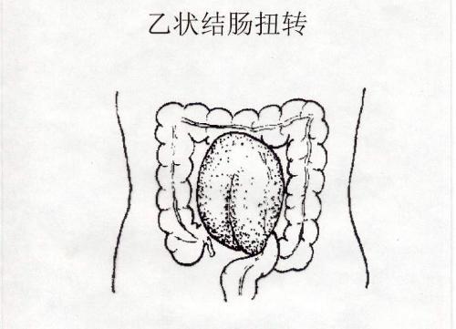 乙状结肠及横结肠迂曲,左下腹疼痛,需要手术吗?